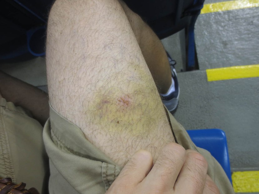12_bruise_from_last_week_at_citi_field